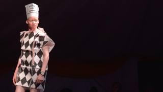 Kenya: Mister e Miss albini contro la discriminazione