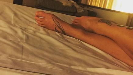 La caviglia gonfia di Fede