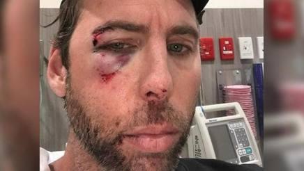 Grant Hackett, 36 anni, la foto con l'occhio destro tumefatto postata su Instagram