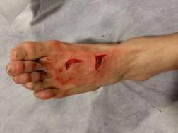 Il piede sinistro di Herrera al termine di Porto-Juve. Twitter