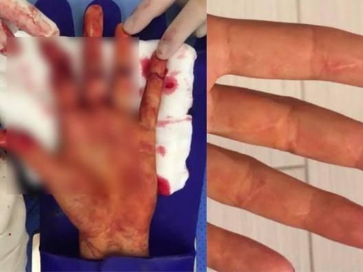 La mano di Petra Kvitova prima e dopo l'operazione