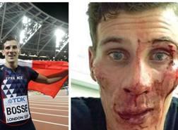 Pierre Ambroise Bosse, 25 anni, dopo la vittoria ai Mondiali di Londra negli 800 metri (a sinistra) e dopo l'aggressione (a destra). AP