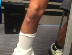 Valentino Rossi mostra la gamba infortunata