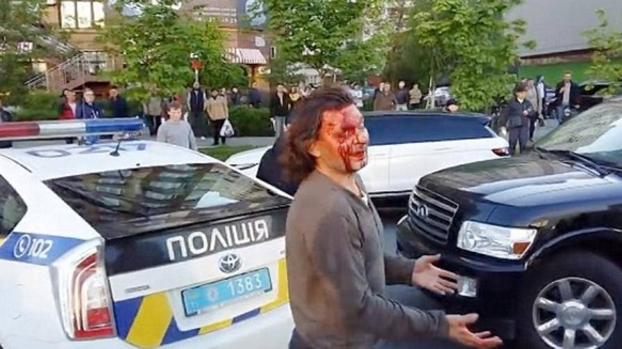Ex lottatore ubriaco, 7 poliziotti per fermarlo