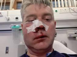 L'arbitro Sweeney, 50 anni, dopo l'aggressione. @Twitter