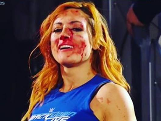 Becky Lynch, il naso è rotto
