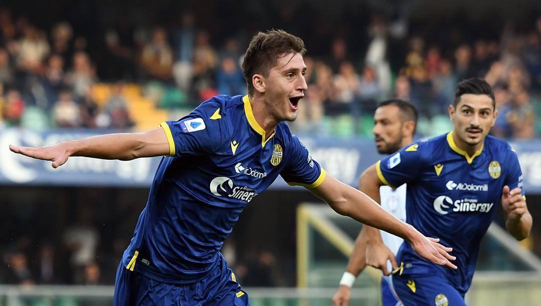 Douglas Costa, ennesimo infortunio: i tempi di recupero per la Juventus