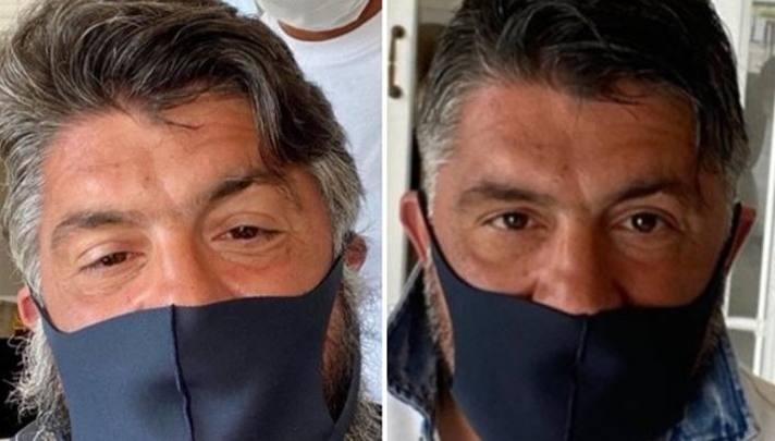 Rino Gattuso, prima e dopo il taglio