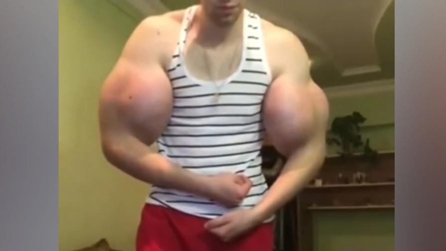 Si inietta olio nei muscoli per avere questi bicipiti